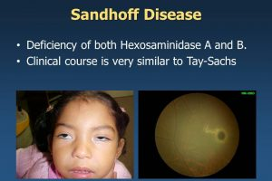 Sandhoff child
