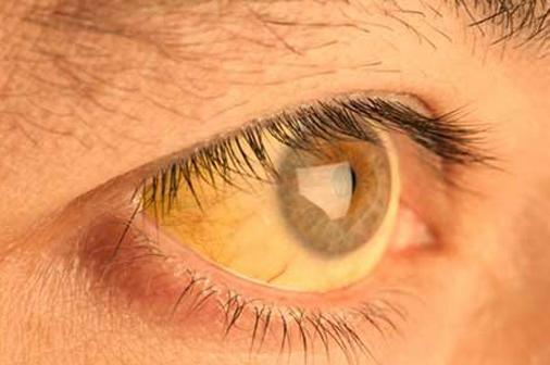 Eye jaundice